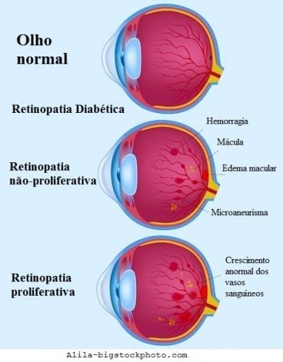 Retinopatia diabética, sintomas e fases, proliferativa, causas