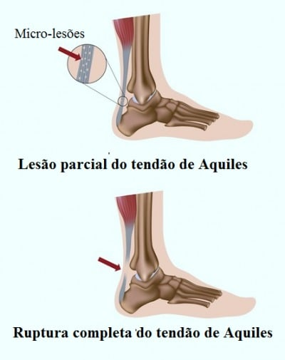 Ruptura do tendão de Aquiles