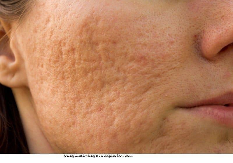 Com que frequência fazer a casca de cara na pele de problema