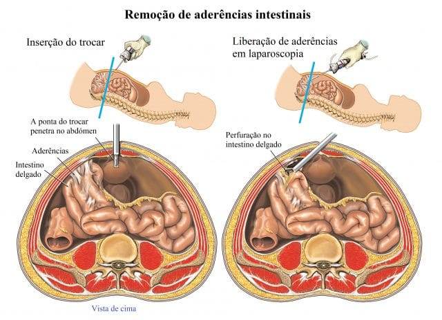 aderências,intestinais,intervenção