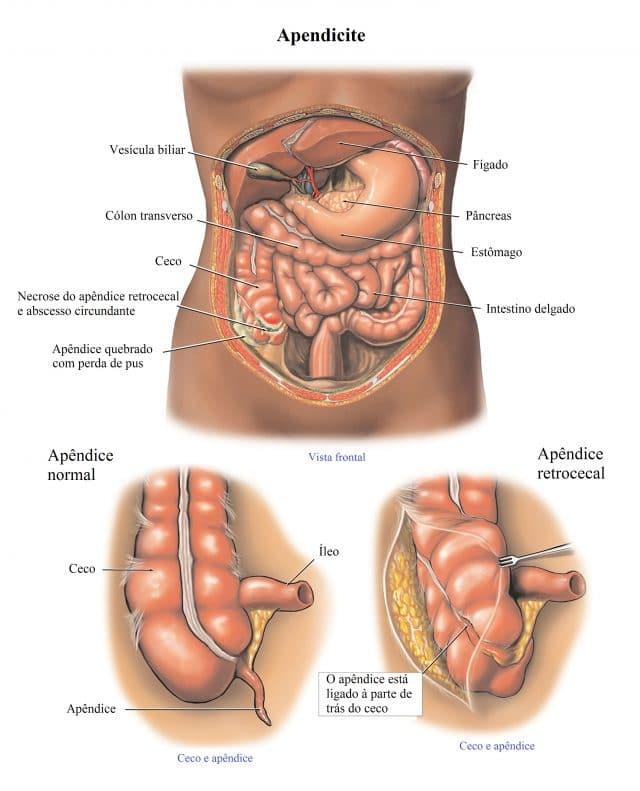 apendicite,infecção,retrocecal