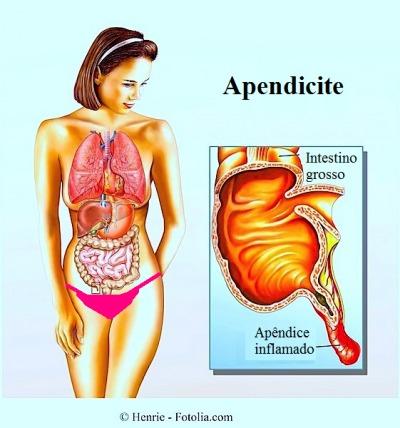 apendicite,apêndice inflamado