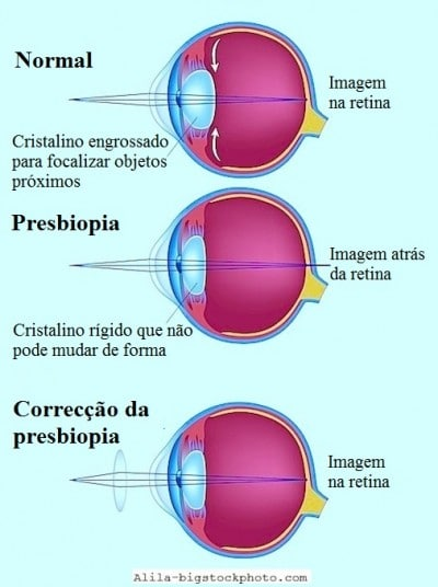 Presbiopia,óculos,lentes,focalização