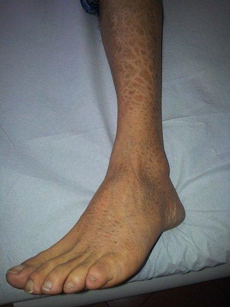 Eczema,perna,tornozelo,dermatite