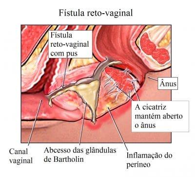 fístula,anal,reto,vaginal
