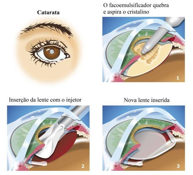 Catarata, facoemulsificação. inserção da lente