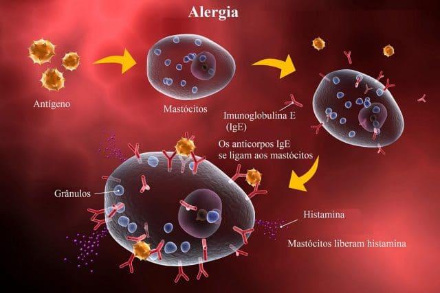reacção,alérgica