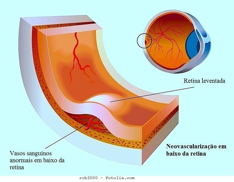 Descolamento de retina,neovascularização