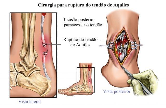 ruptura,do,tendão,aquiles,cirurgia