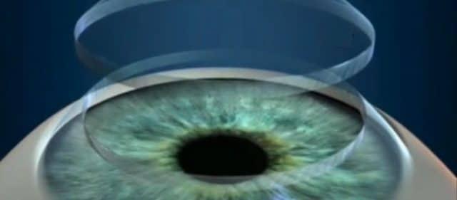 transplantes de córnea, olho