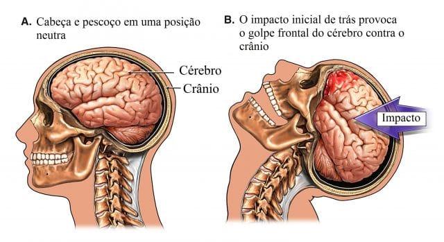 traumatismo,craniano