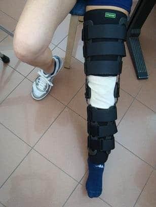 Órtese, joelho,cruzado anterior, ajustável, ângulo, 30°, 60°, 90°fratura, imobilização