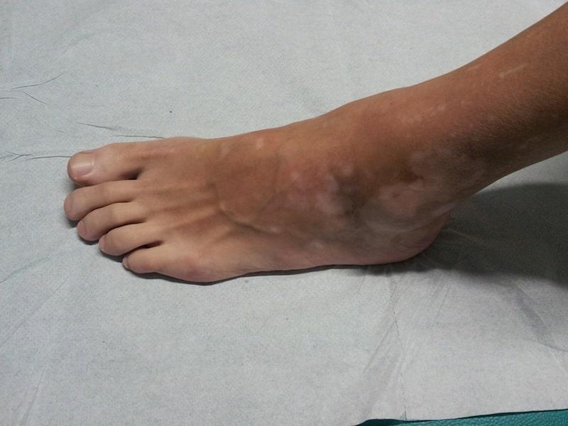 Vitiligo, pé, manchas brancas