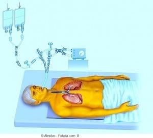Paciente, acamado, respirador, internação, hospital