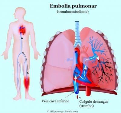 Resultado de imagem para embolia pulmonar raio x