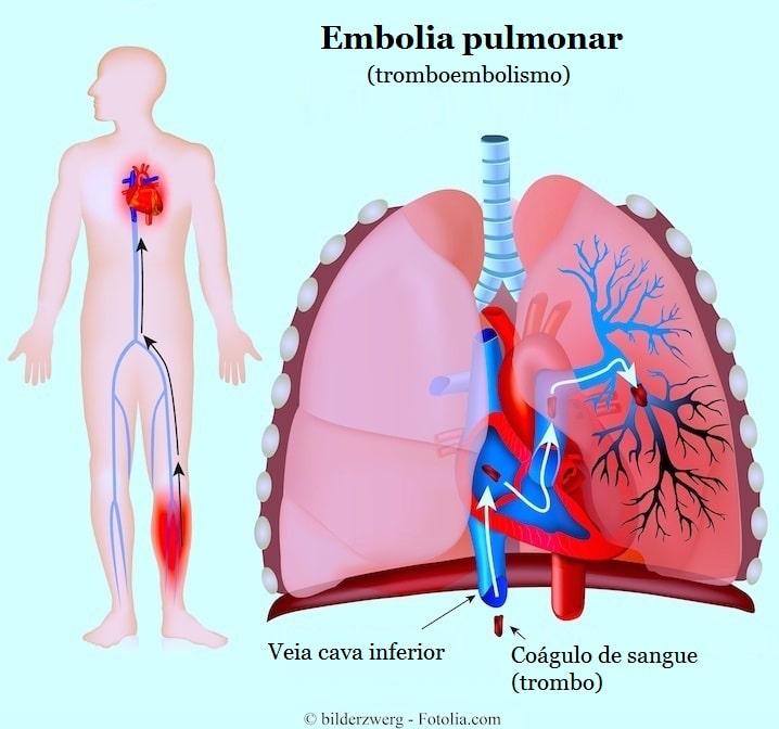 http://www.fisioterapiaparatodos.com/p/wp-content/uploads/2014/07/Embolia-pulmonar.jpg