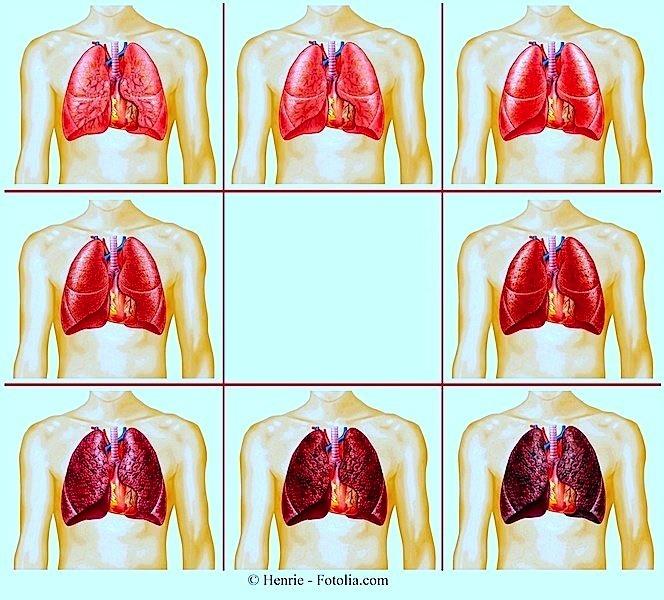 Parar de fumar, pulmões, danos