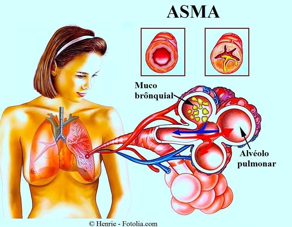 Asma brônquica, pulmão, brônquio