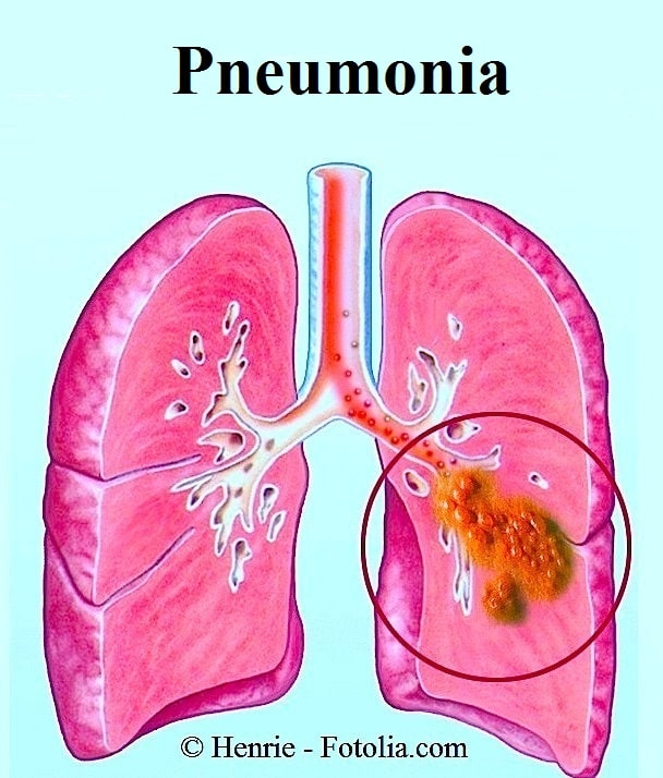 disease process pneumonia Streptococcus pneumoniae  transformation is a complex developmental process requiring energy diseases and symptoms pneumonia is the most common and.