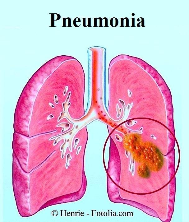 Pneumonia, pulmão, infecção, inflamação
