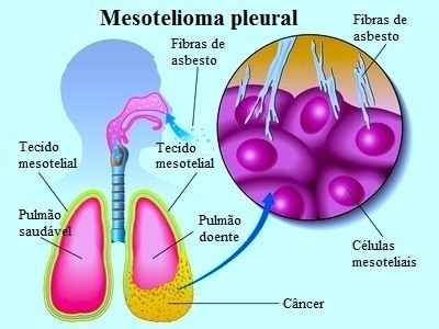 Cancer peritoneal avanzado esperanza de vida