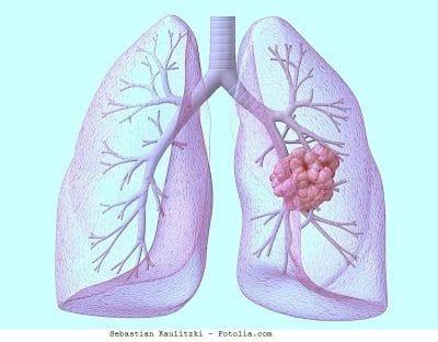 Metástase no pulmão
