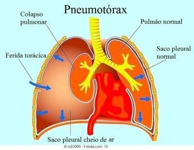 Pneumotórax espontâneo ou traumático