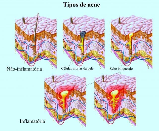 acne,espinhas,inflamadas