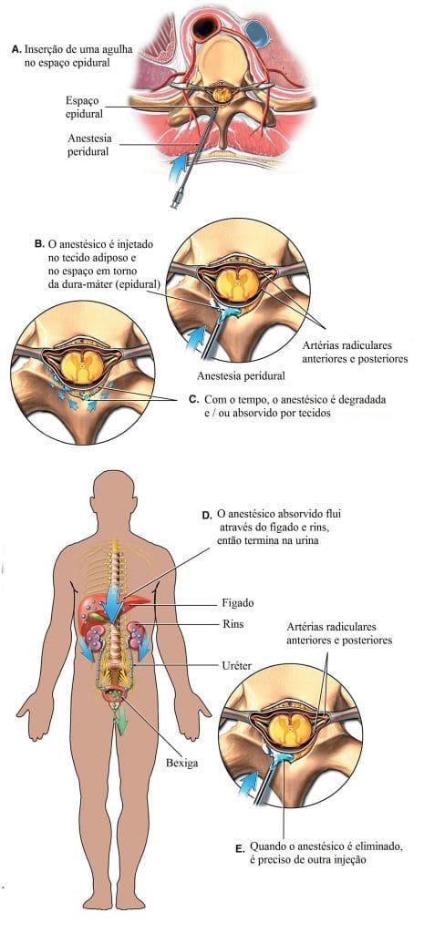 anestesia,peridural,ou,epidural