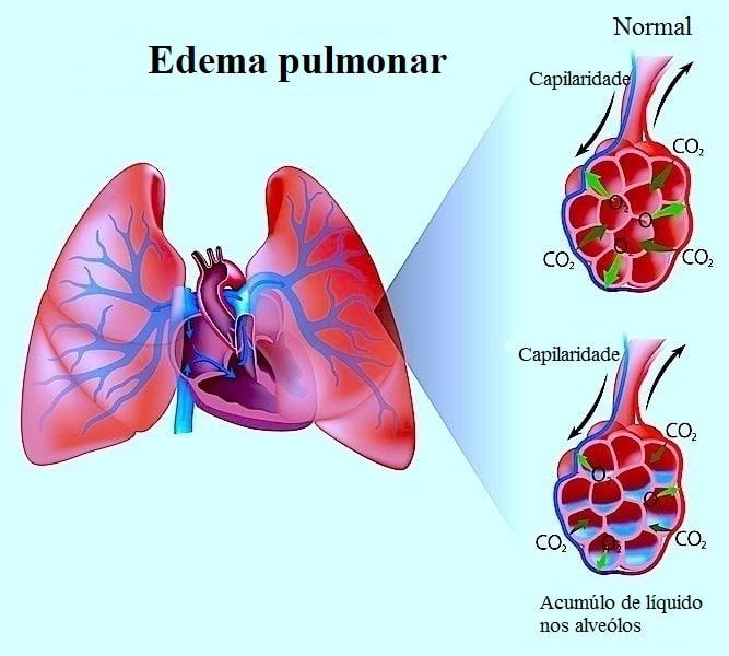 Edema pulmonar,líquido,inflamação