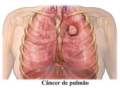 câncer,de,pulmão