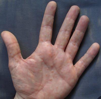 disidrose, mãos, wikipedia