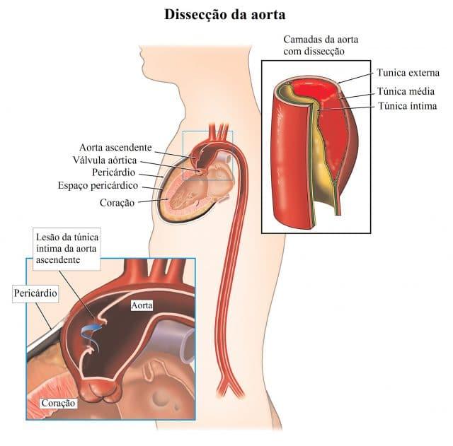 dissecção,aórtica