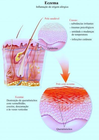 eczema,dermatite,atópica