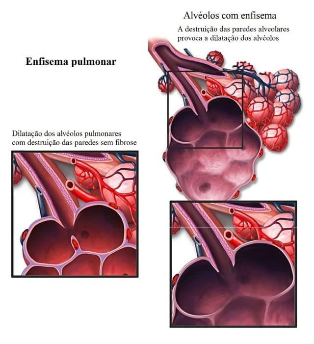 enfisema,pulmonar,alvéolos