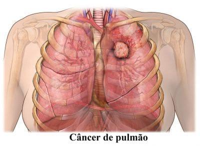metástases,pulmonares