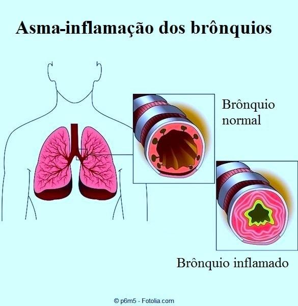 Tosse,asma,brônquios,bronquite