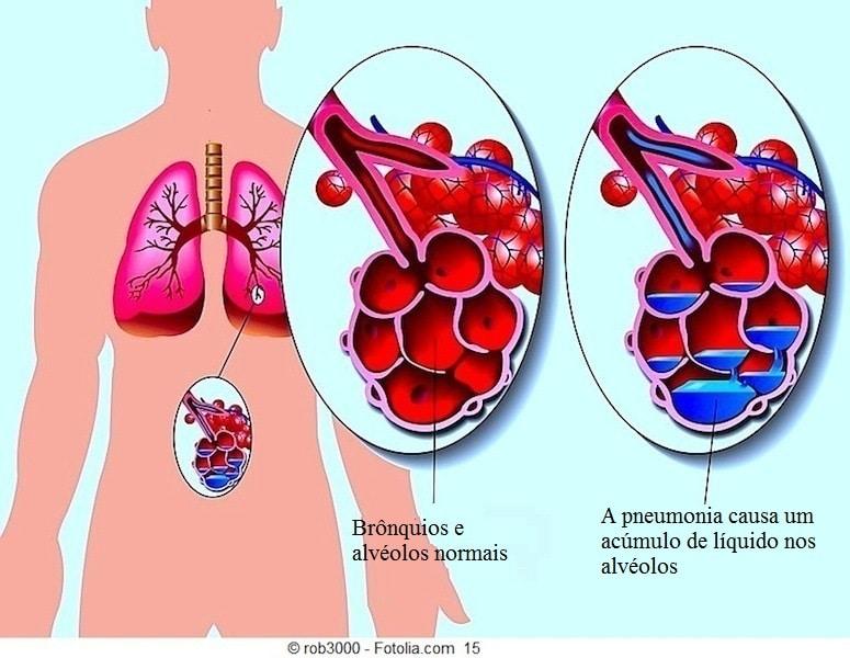 Pneumonia,sintomas,alvéolos