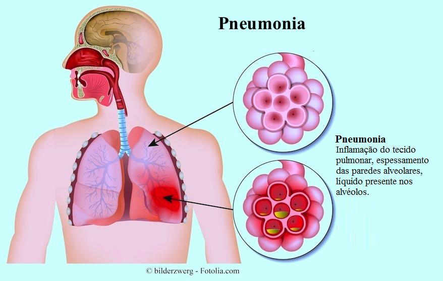 http://www.fisioterapiaparatodos.com/p/wp-content/uploads/2014/07/sintomas-da-pneumonia.png