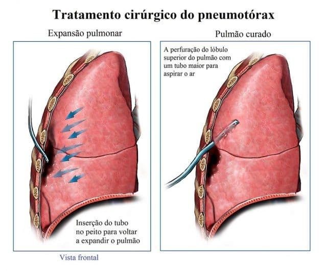 tratamento,cirúrgico,do,pneumotórax