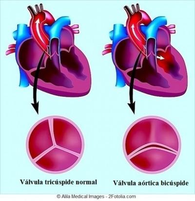 Estenose aortica