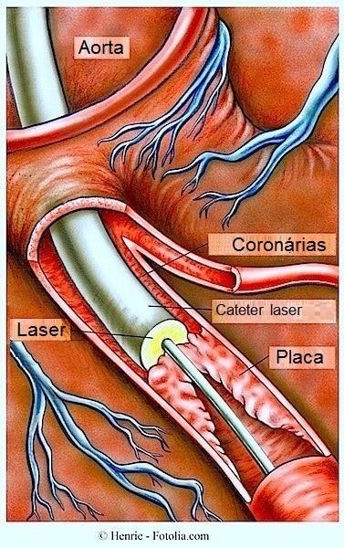 Angioplastia coronária