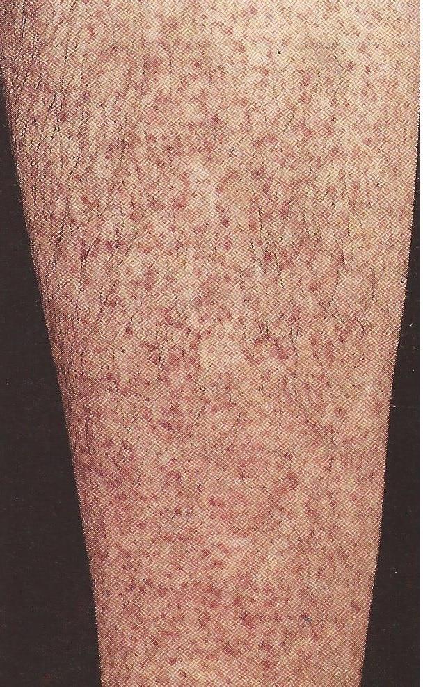 causas de varizes nos braços