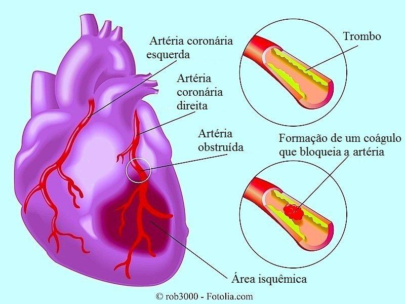 infarto do miocárdio, ataque cardíaco