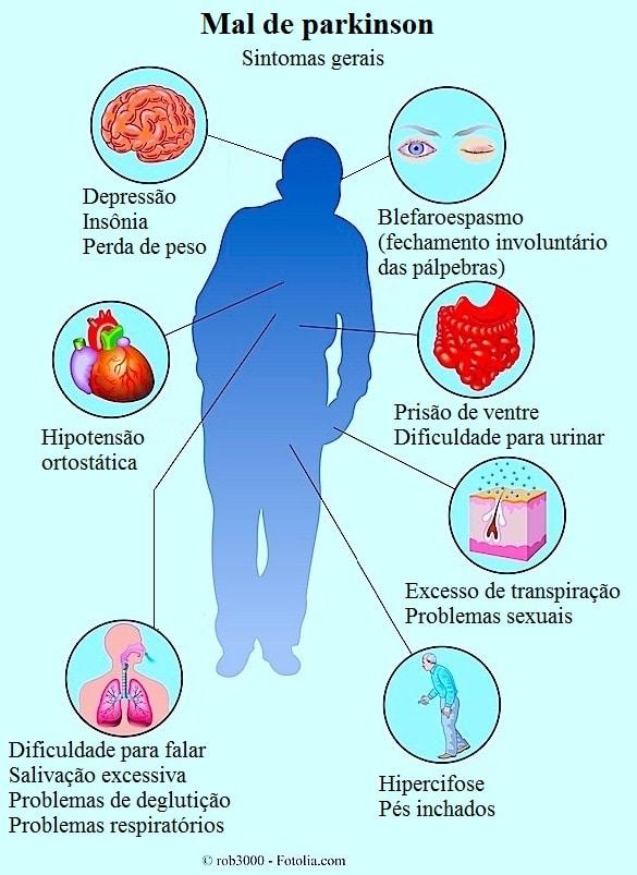 Parkinson Anzeichen