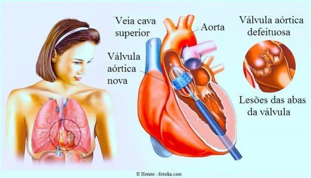 Substituição da válvula aórtica transcateter,estenose aortica