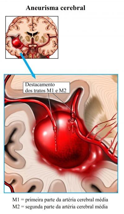 aneurisma,cerebral