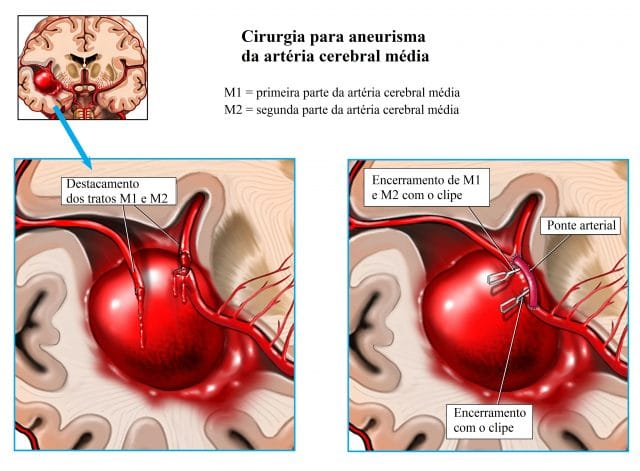 aneurisma,cerebral,artéria