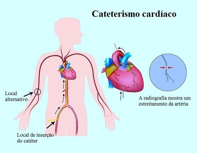 Cateterização cardíaca,arterial