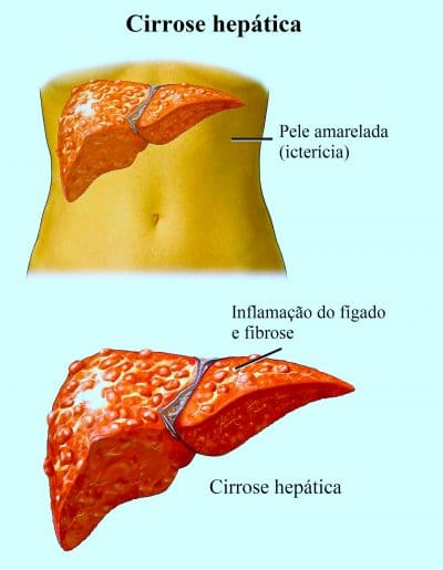 cirrose,hepática,icterícia